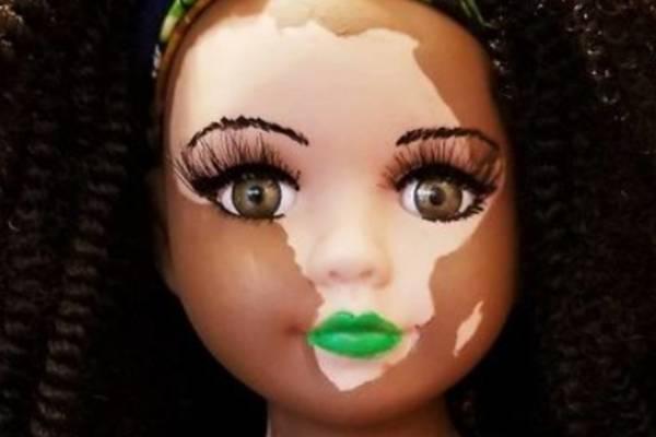 muñeca con vitiligo