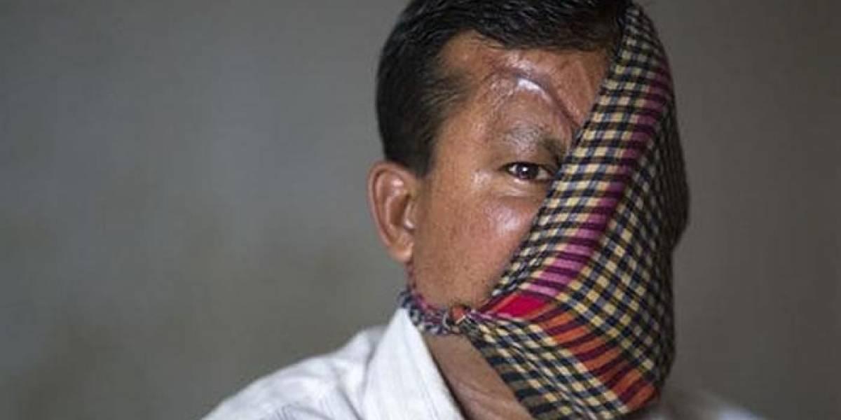 Después de 23 años, hombre reveló cómo quedó su rostro destrozado por un tigre