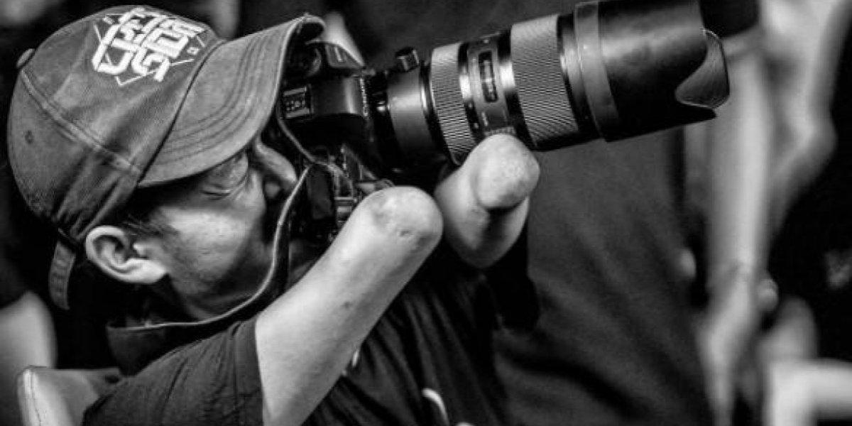 Nació sin brazos ni piernas pero eso no le impidió convertirse en un gran fotógrafo