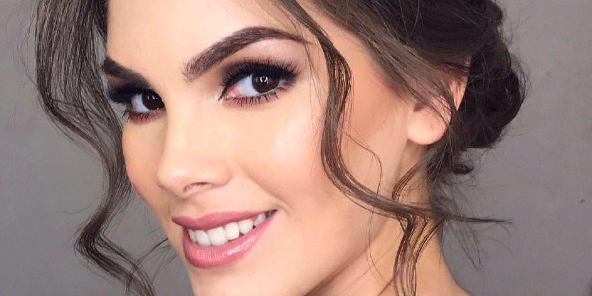 Miss México se deja ver sin maquillaje e impacta al mostrar la alergia en su piel