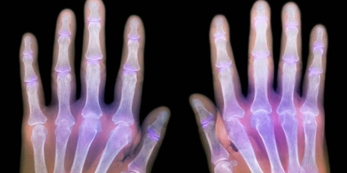 Mala salud bucal y tabaquismo, factores de riesgo para la artritis reumatoide