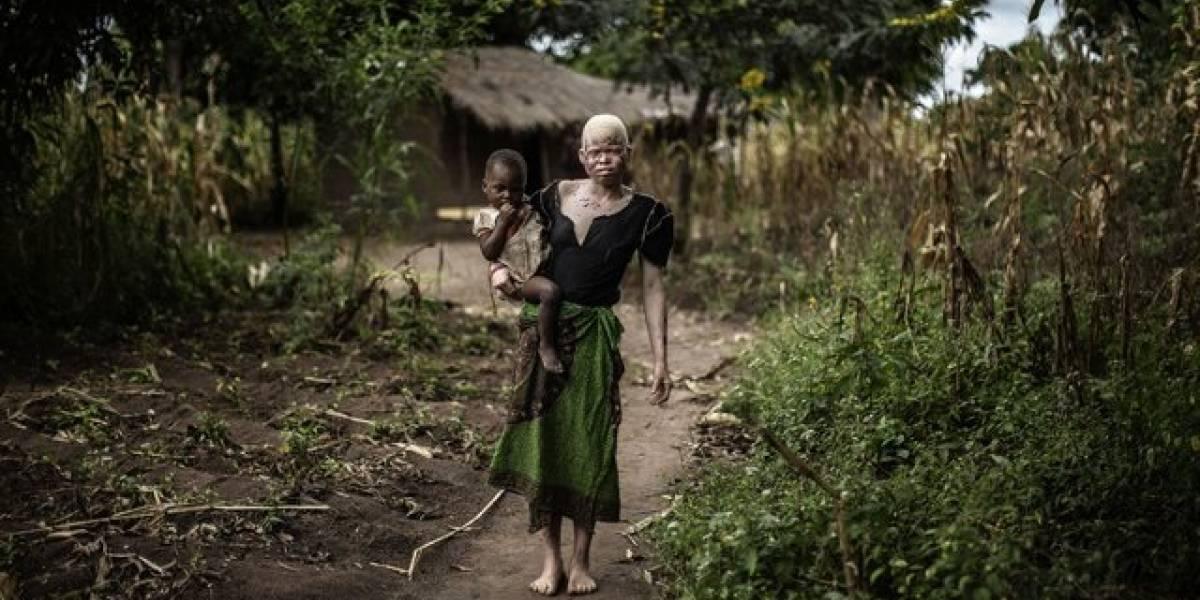 """Pánico en África: multitud asesina a siete """"vampiros"""" y la ONU retira a su personal por temor a los chupasangre"""