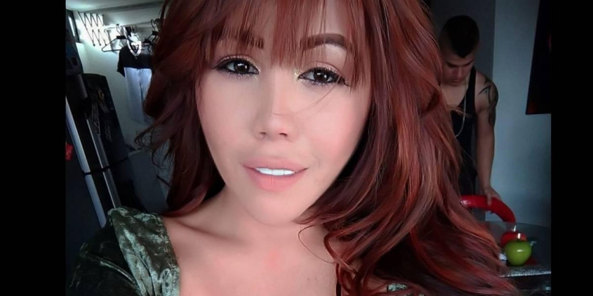 Así se ve Yina Calderón luego de nueva cirugía en el rostro