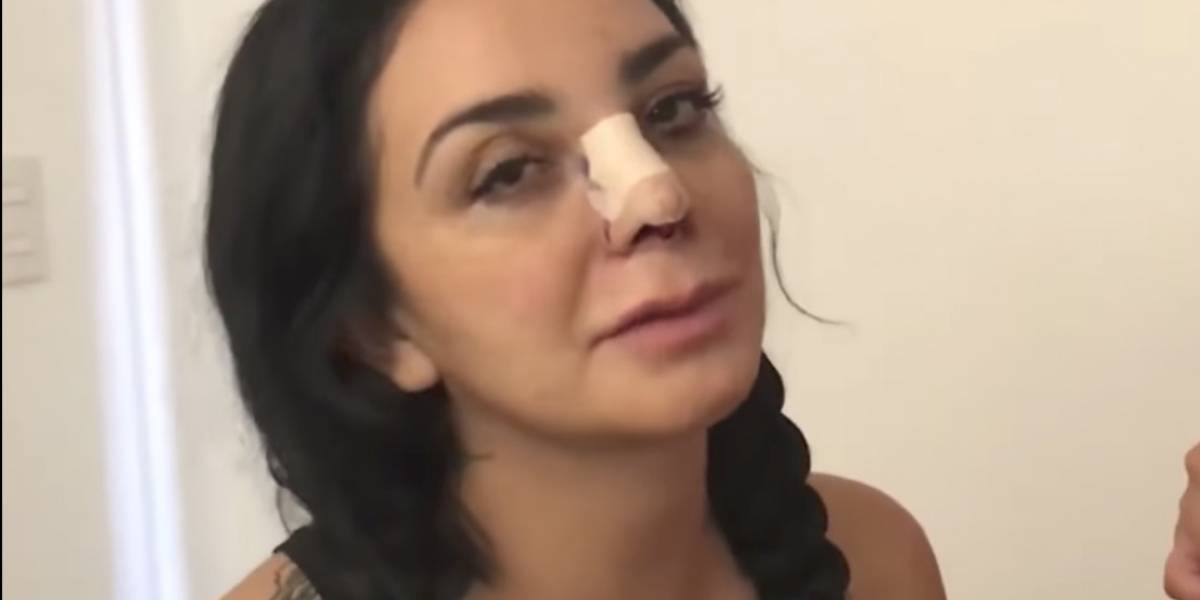 Así luce La Wanders luego de someterse a tercera cirugía de nariz