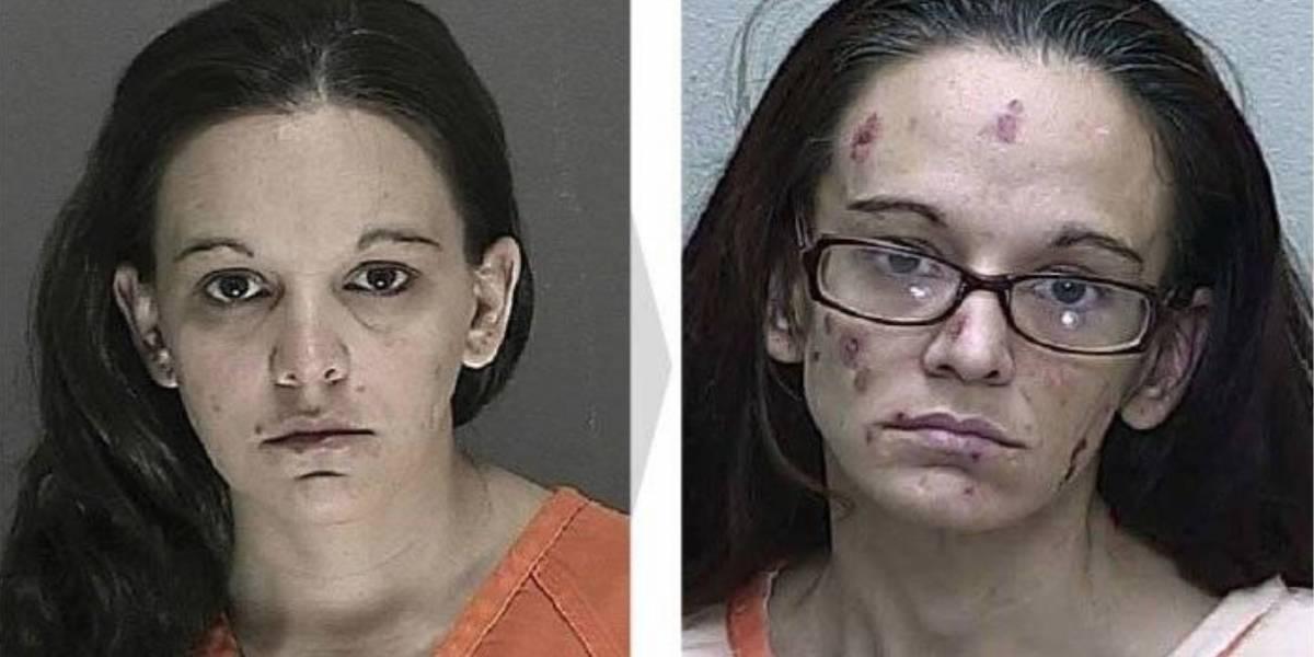Fotos de personas antes y después de que empezaran a usar drogas