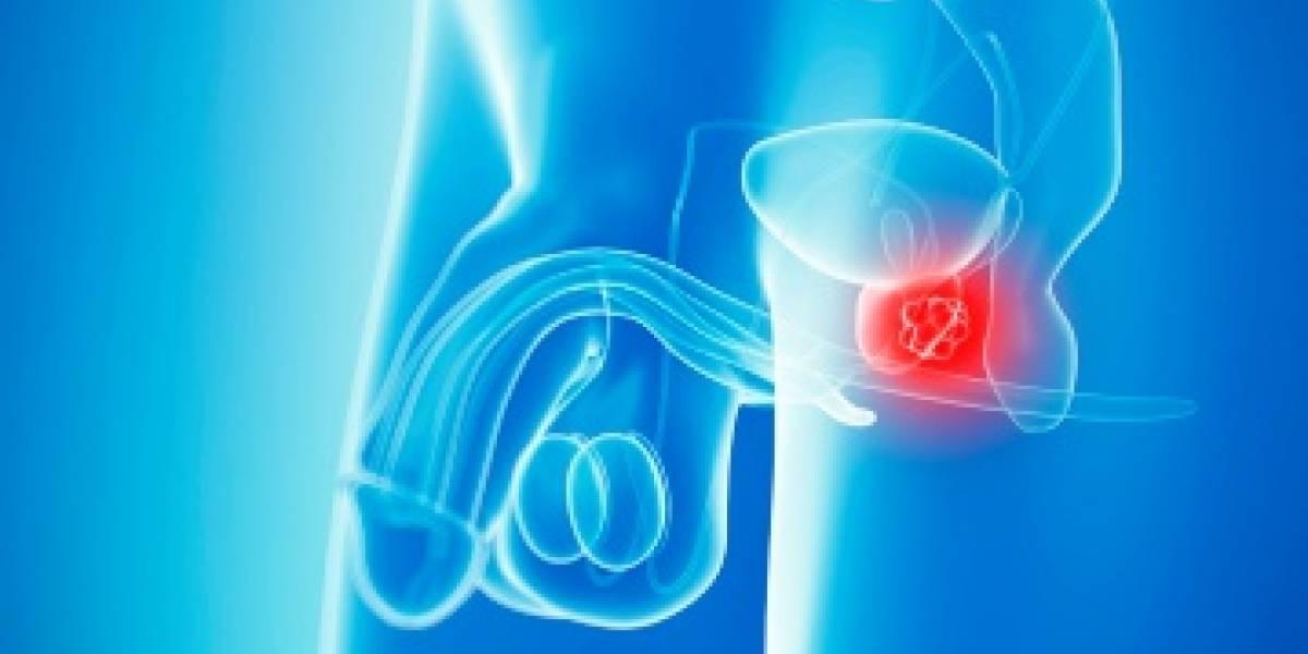 Algunos nervios impulsan el avance del cáncer de próstata