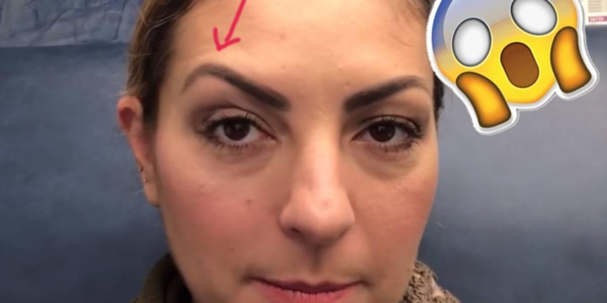 A Mariana Ochoa el botox le dejó la ceja al estilo La Doña