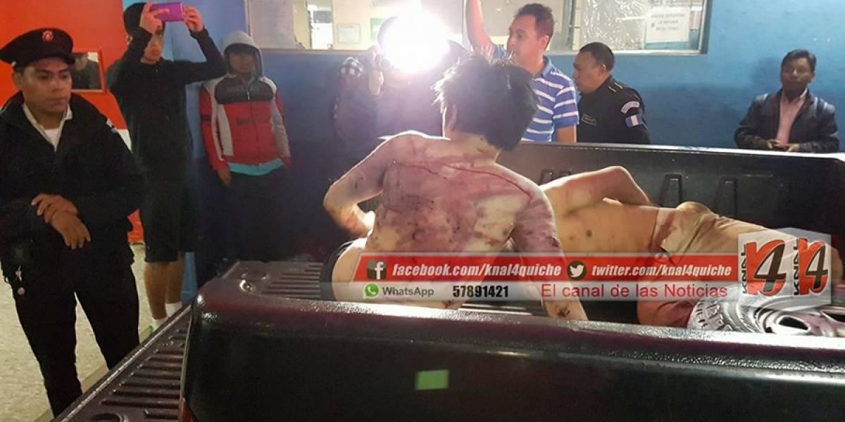 VIDEO. Azotados y vapuleados los presuntos responsables de muerte de niño de 12 años