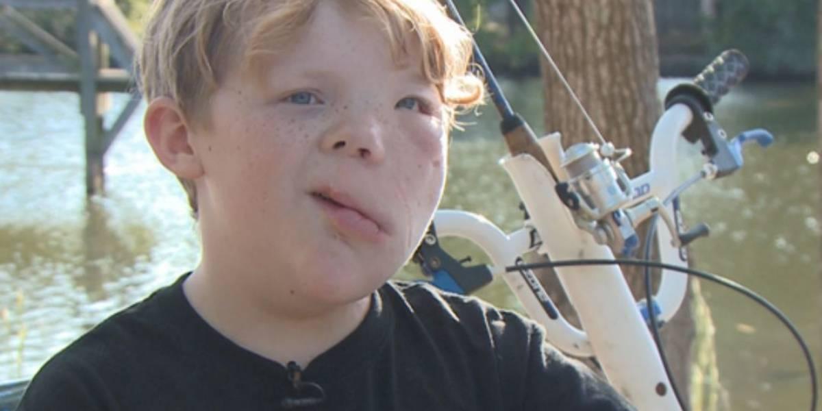 Vítima de bullying por síndrome rara, menino ganha escolta de motoqueiros até a escola