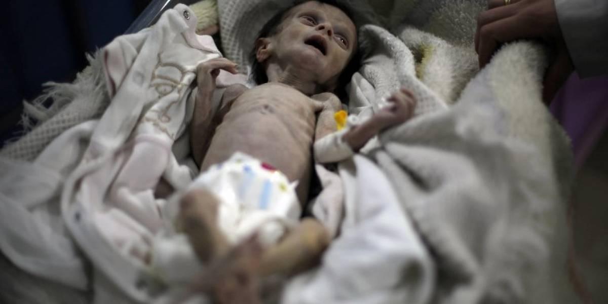 Siria: las desgarradoras fotos de un bebé que muestran el rostro del hambre a causa de la guerra