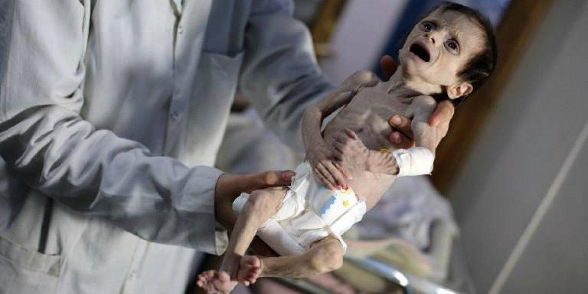 """Fotos de guagua famélica en Siria """"estremece"""" la conciencia de la ONU"""