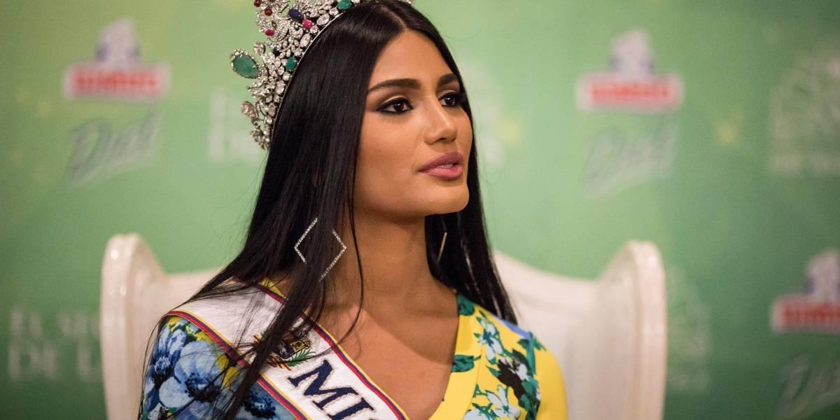 Difunden fotos de Miss Venezuela antes de las cirugías