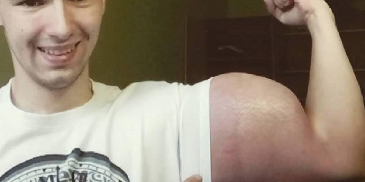 Polémico Popeye ruso se inyecta aceite en los brazos para romper récords