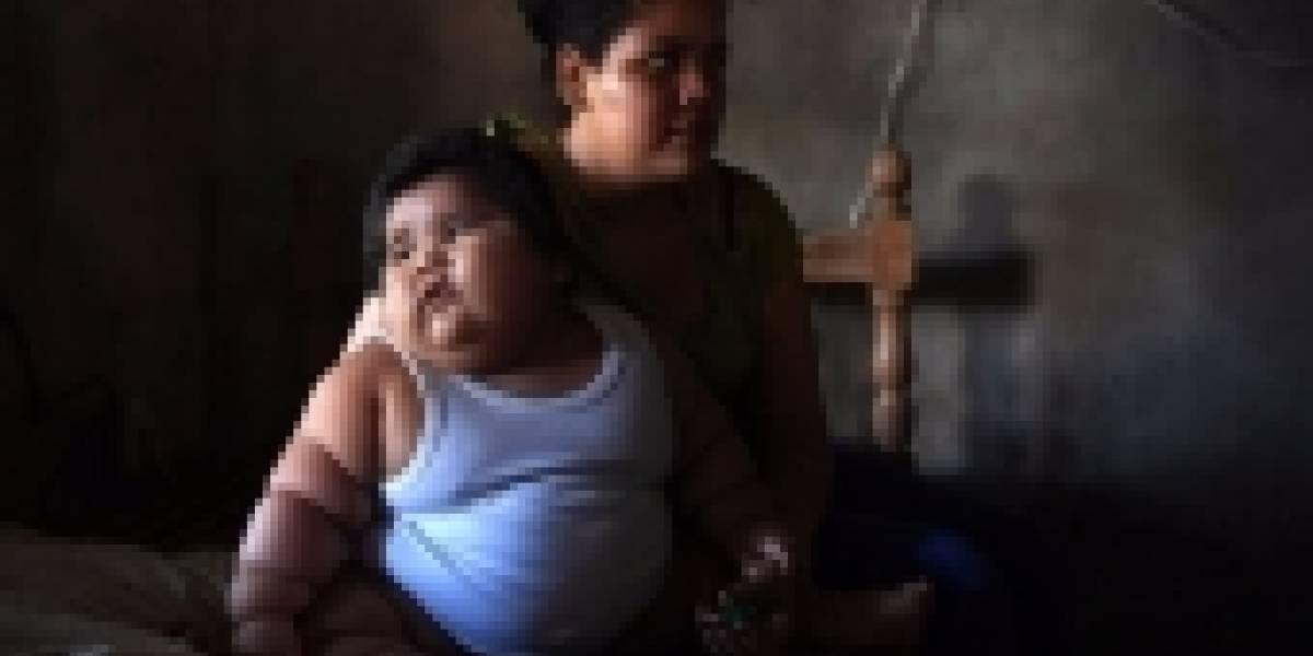 El bebé mexicano de 10 meses que pesa 28 kilos y los médicos no saben por qué