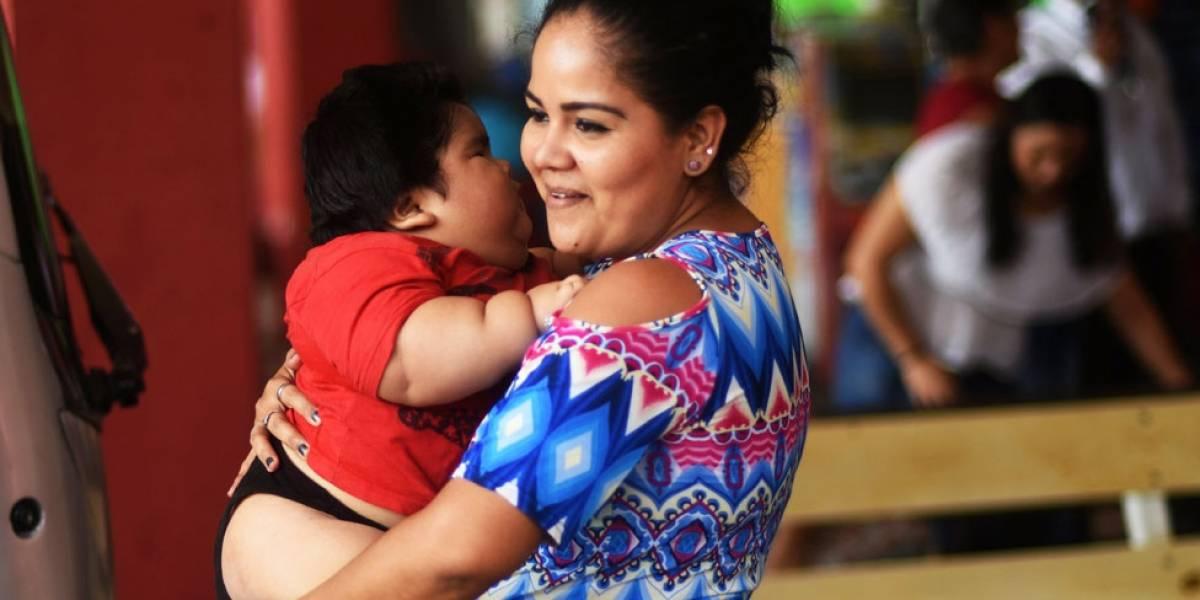 Qué es la inflamación celular por deficiencia de grasas omega 3, la enfermedad que padece el bebé mexicano de 28 kilos