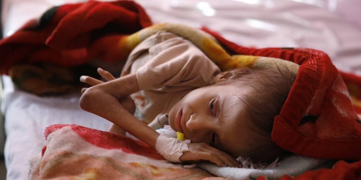 En lo que va de 2017, 50 mil niños han muerto por hambre en Yemen