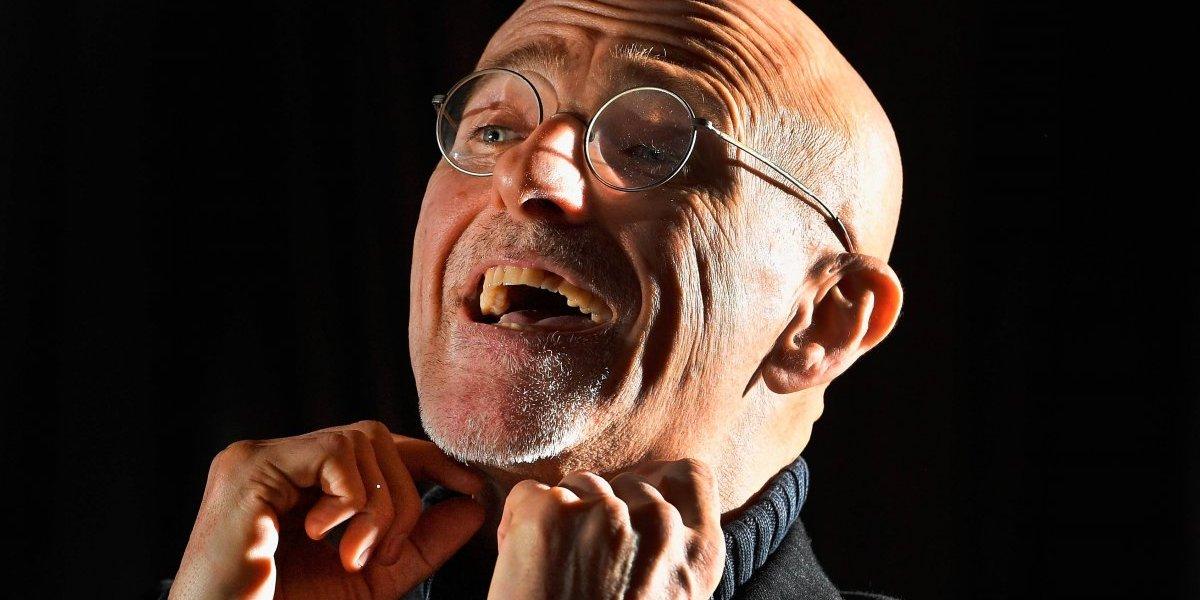 Sin evidencias, médico asegura que realizó el primer trasplante de cabeza humana