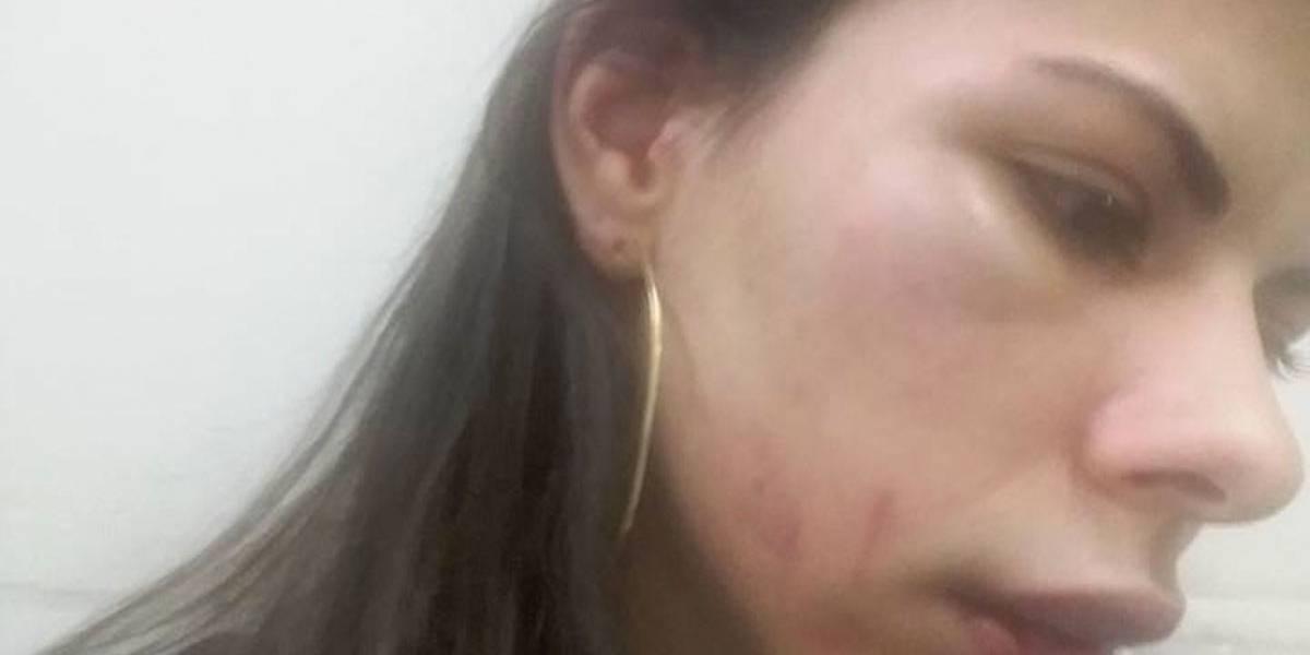 Jovem agredida pelo namorado publica fotos do rosto inchado em rede social