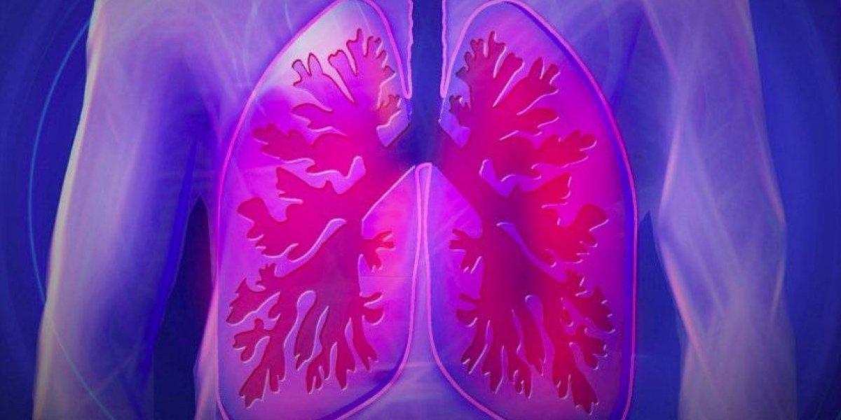 Lo que debes saber sobre el cáncer de pulmón