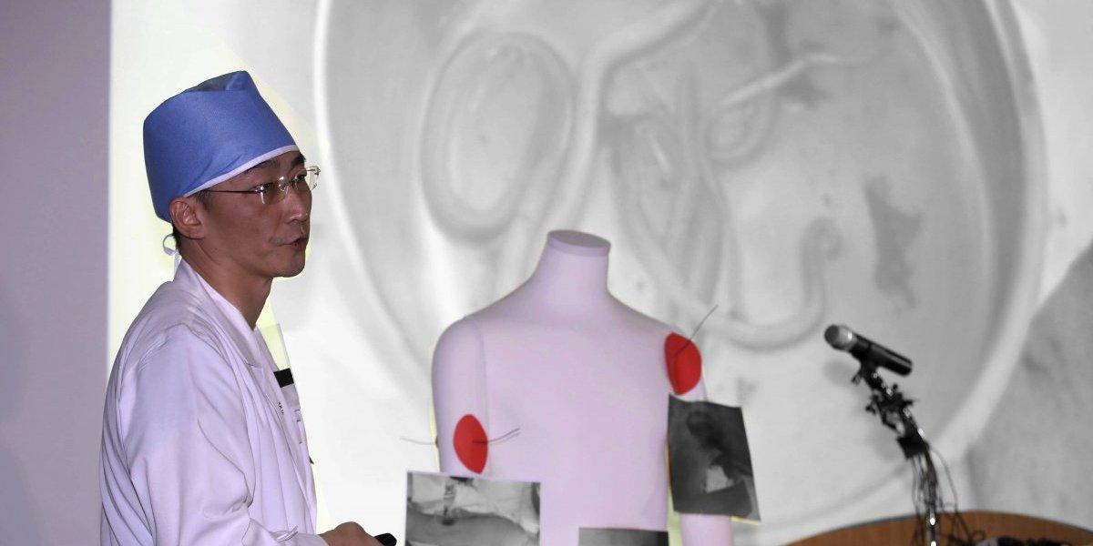Soldado que huyó de Corea del Norte tenía 'lombrices' de 30 centímetros