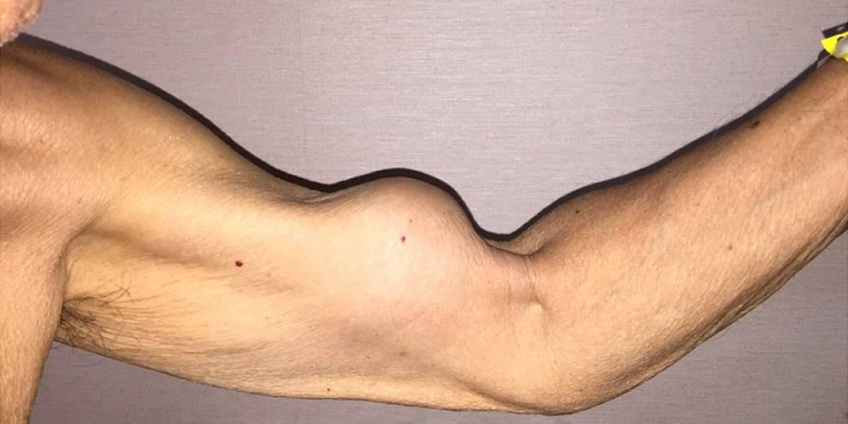 Cuándo el brazo de Popeye deja de ser símbolo de fuerza y se convierte en algo indeseable