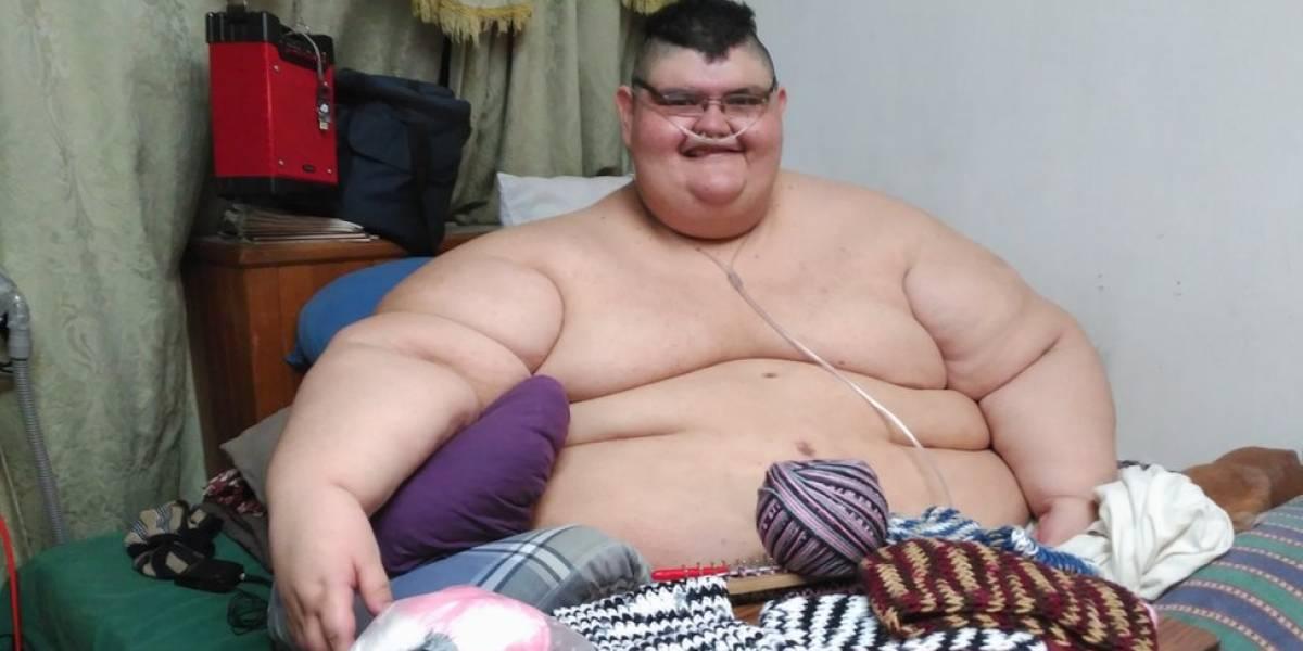"""""""Pasear, sentir el aire, caminar"""": los pequeños placeres con que sueña Juan Pedro Franco, el hombre más obeso del mundo tras la operación que puede hacerlo perder 216 kilos"""