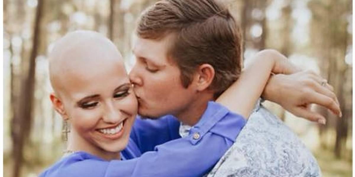 """""""Fue lo más difícil que hice en mi vida"""": Makenzee Meaux, la mujer de 21 años que compartió su alopecia en internet"""