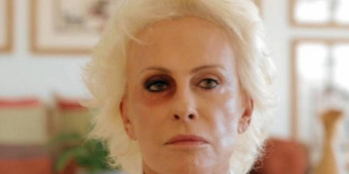 Ana Maria Braga aparece de olho roxo em campanha sobre violência contra a mulher
