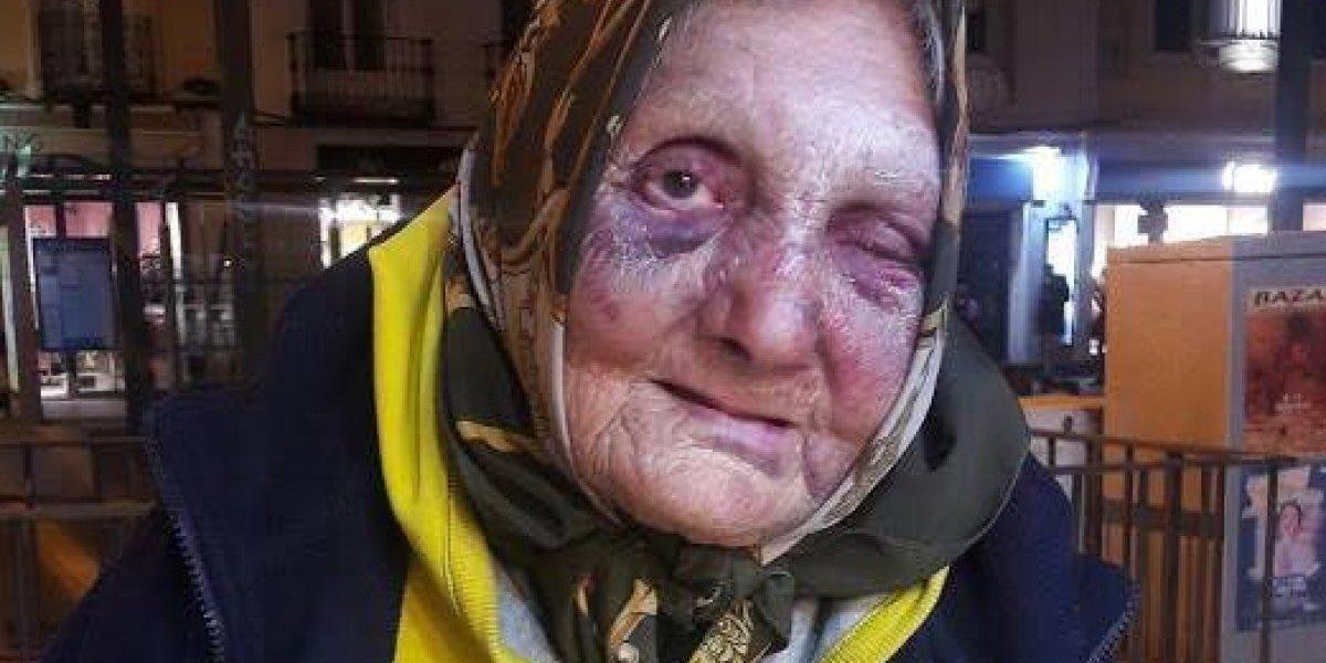 Golpiza a mujer de 85 años indigna en redes sociales; exigen justicia