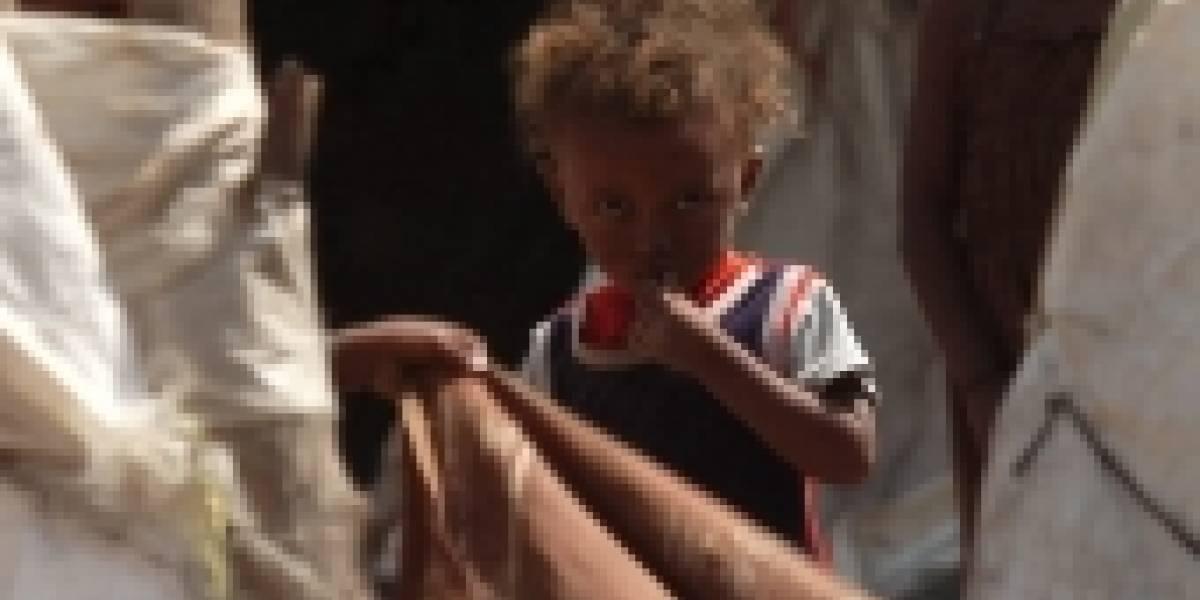 La desolación y el hambre que sigue dejando la guerra en Yemen