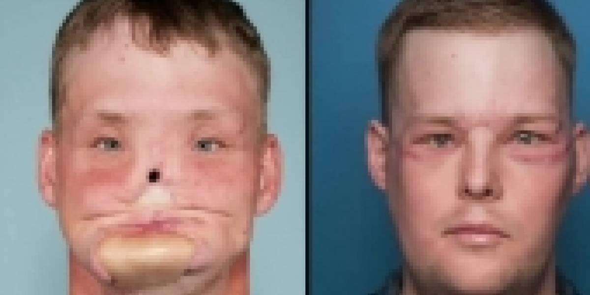 La mujer que conoció al hombre a quien le trasplantaron la cara de su difunto esposo