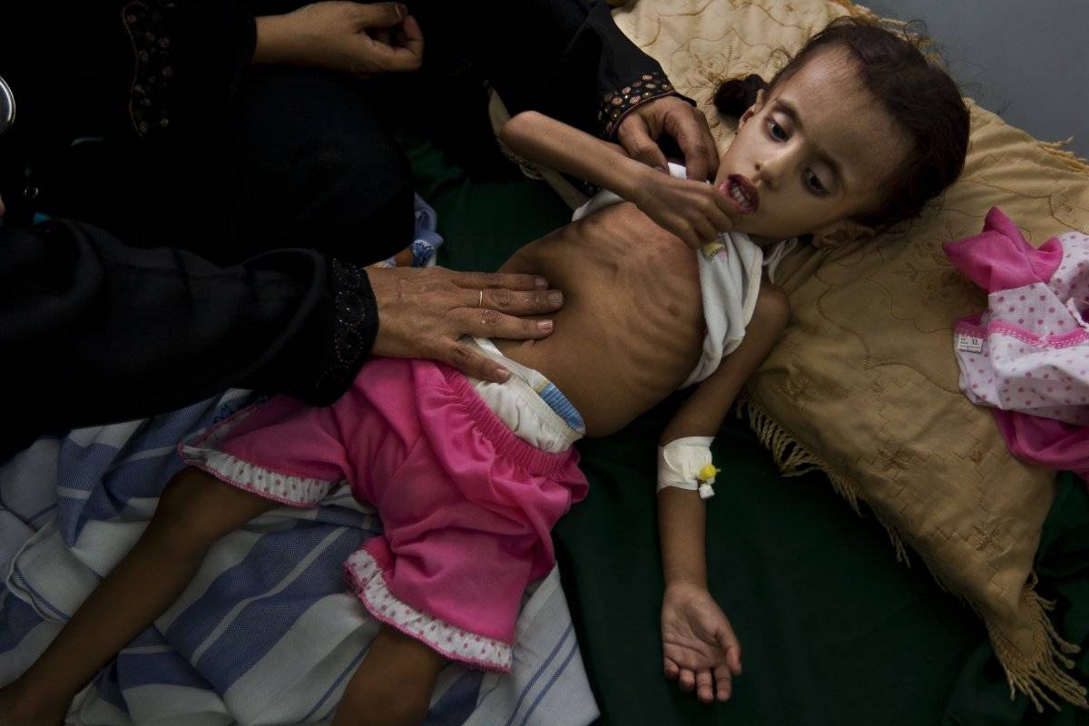 La desnutrición es uno de los peores males que aquejan a los niños en Yemén.