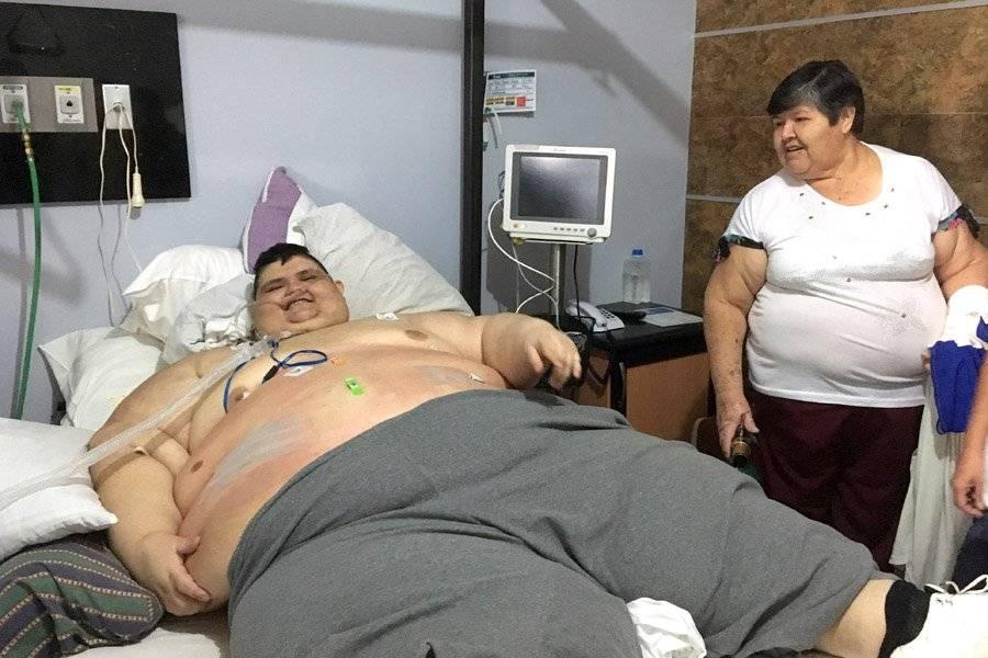 Dan de alta al hombre más obeso del mundo, se sometió a cirugía