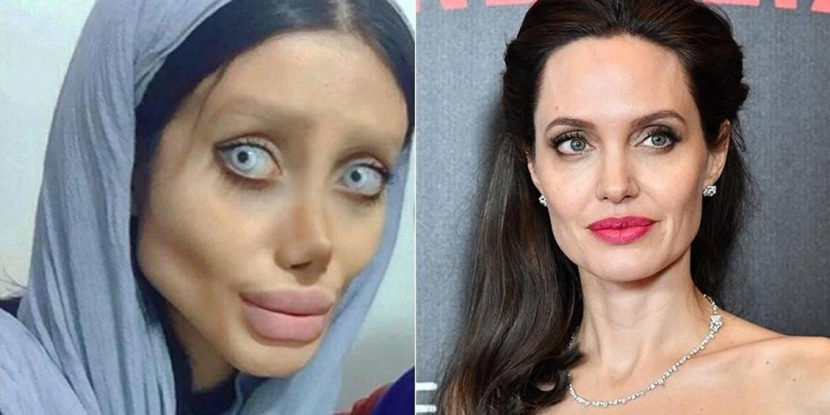 Jovem iraniana nega ter feito 50 cirurgias plásticas para parecer com Angelina Jolie