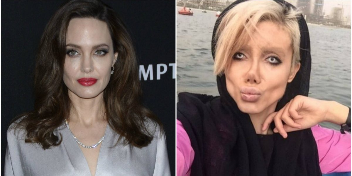Se hace 50 cirugías para parecerse a Angelina Jolie y el resultado es desastroso