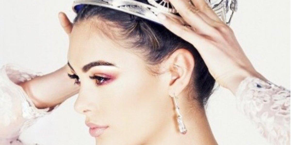 Miss Universo 2017 adora tirar fotos sem make; veja como ela é de cara limpa