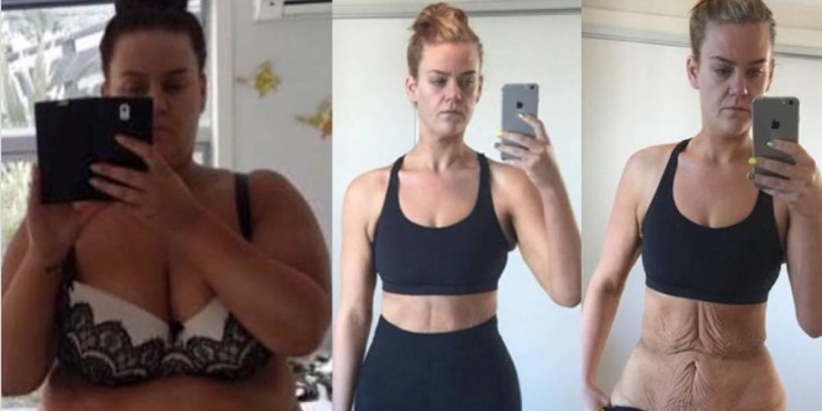 Mujer pierde casi 200 libras y las imágenes de su transformación impresionan a miles