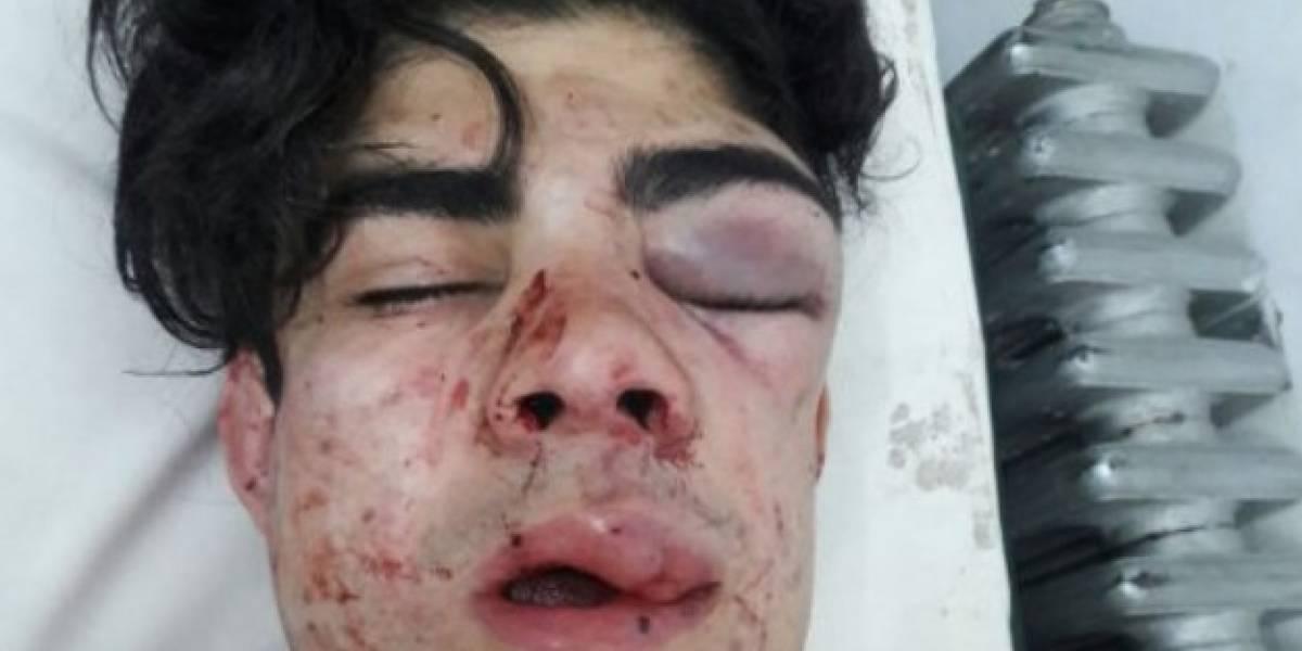 Joven en Argentina recibe brutal paliza porque pensaban que era chileno