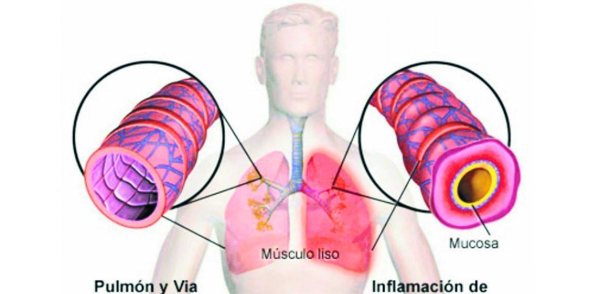 Síntomas y riesgos de la neumonía