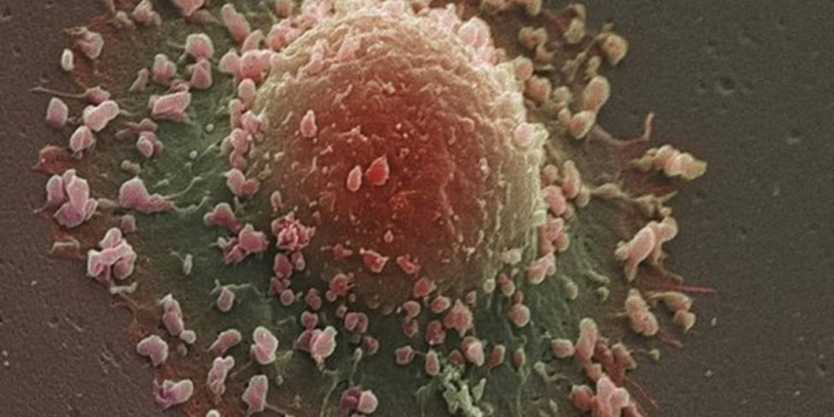 Célula T – a aposta dos cientistas para curar todos os tipos de câncer