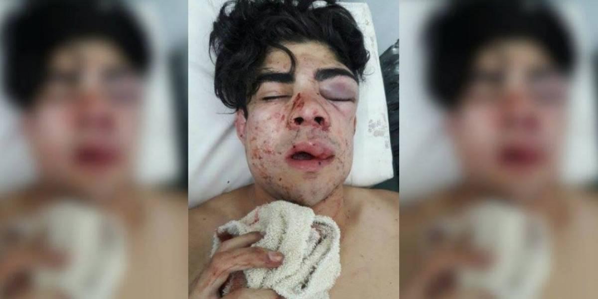 Argentinos le desfiguraron la cara a golpes porque creían que era chileno y su madre dedica desgarradora carta a los atacantes
