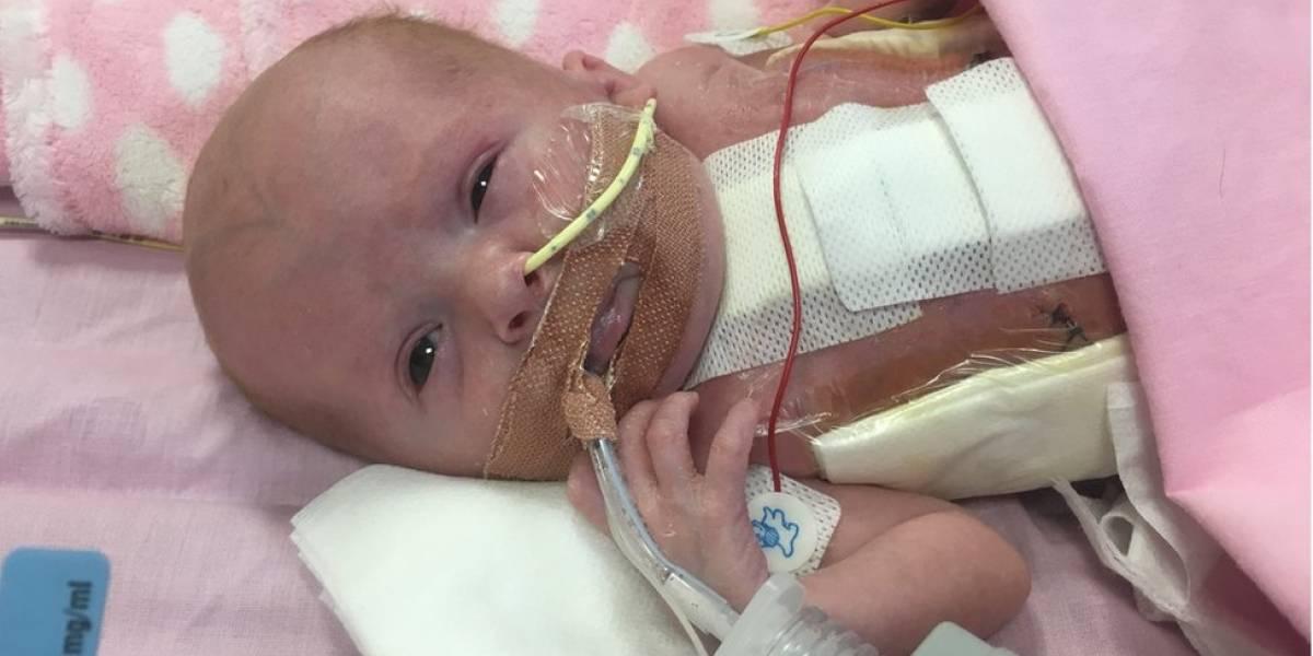 Bebê que nasceu com coração fora do corpo supera expectativas e se recupera