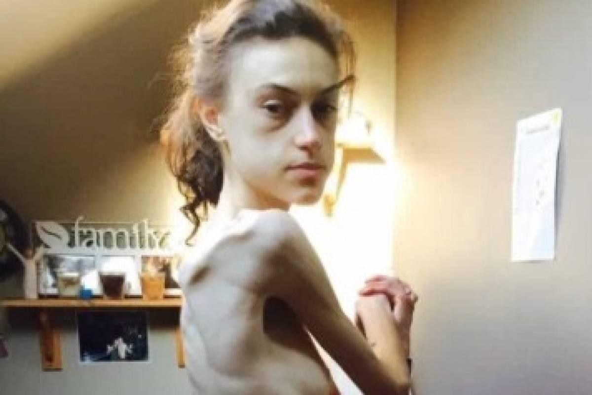 Instagram: mujer que sufrió anorexia comparte su increíble transformación [FOTOS]