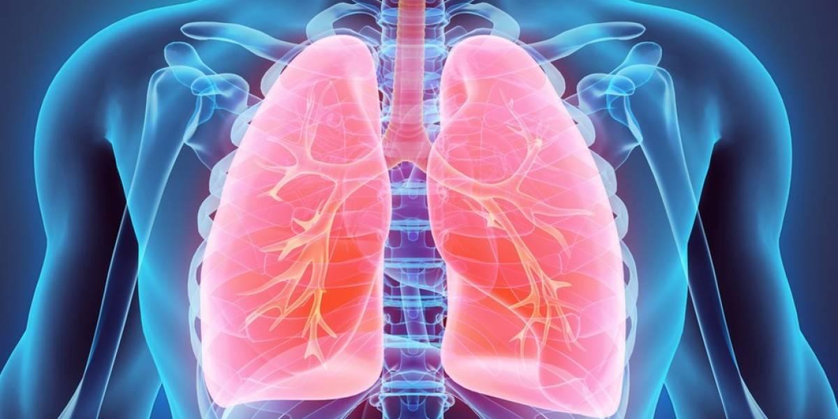 La COVID-19 lesiona los pulmones a largo plazo en muchos pacientes recuperados