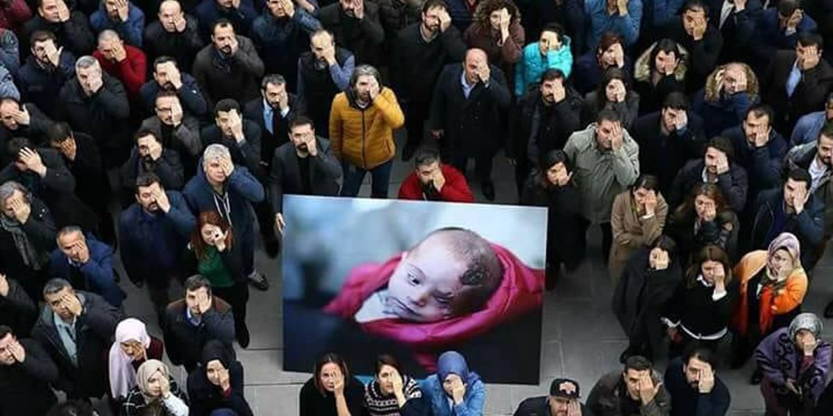 Foto de bebê que perdeu olho em bombardeio na Síria mobiliza campanha mundial