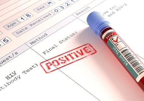 Tabaquismo reduce esperanza de vida a enfermos con VIH/sida Getty Images