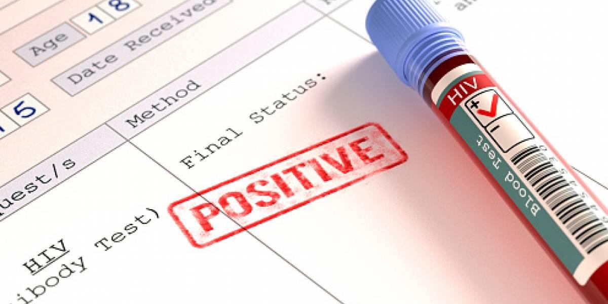 Tabaquismo reduce esperanza de vida a enfermos con VIH/sida