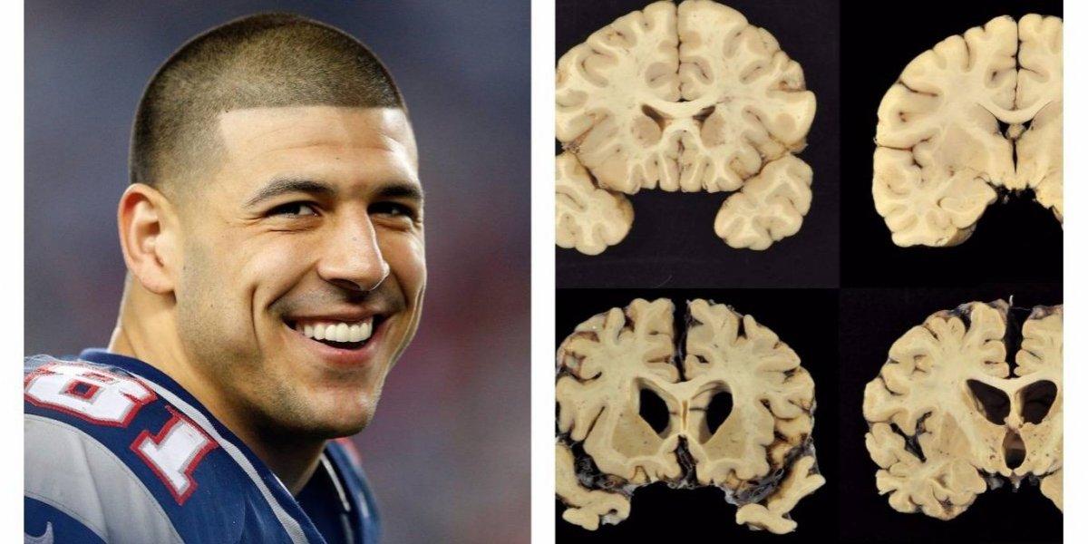 El suicidio de Aaron Hernández, un caso que conmocionó la NFL