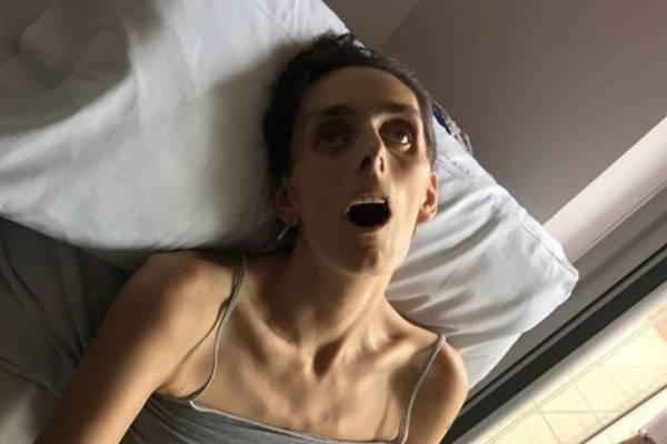 Novia logra casarse 18 horas antes de morir de un agresivo cáncer