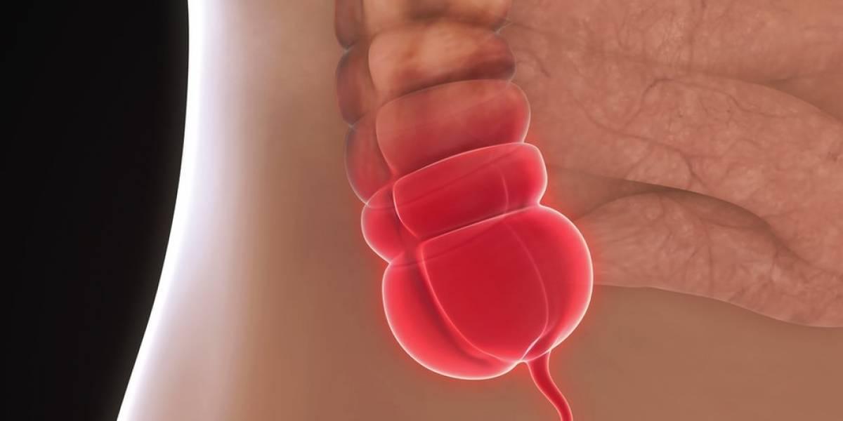 Remover apêndice reduz em 19% risco de Parkinson, aponta estudo